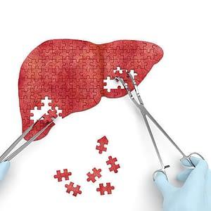 Liver Surgery